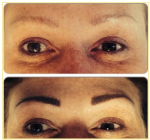 billion-dollar-brows-before-and-after-pic