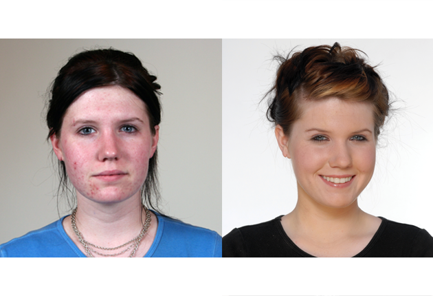 before-after-blemish-control